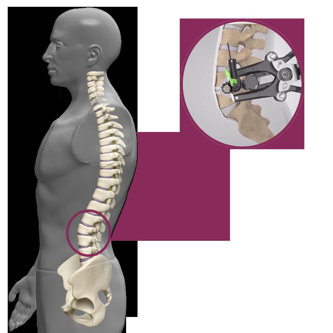 artrodese lombar lateral - Clínica Atualli Especialista Cirurgia Endoscópica de Coluna
