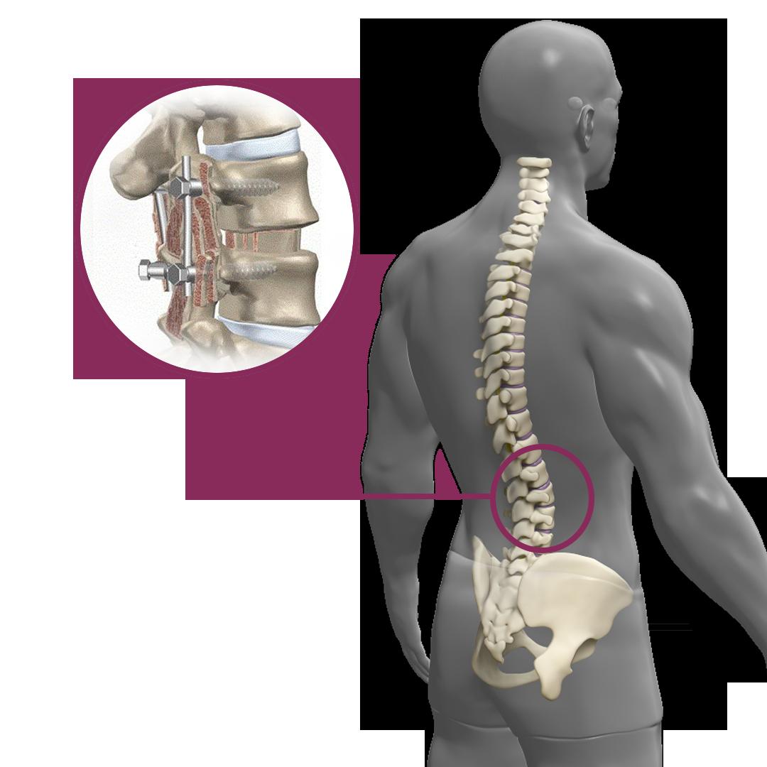 Artrodese lombar posterior - Clínica Atualli Especialista Cirurgia Endoscópica de Coluna