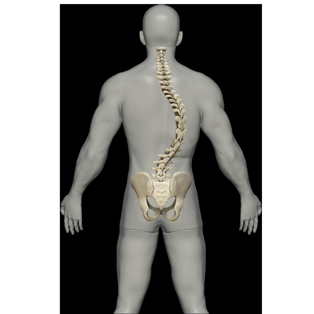 Escoliose - 2 - Clínica Atualli Especialista Cirurgia Endoscópica de Coluna