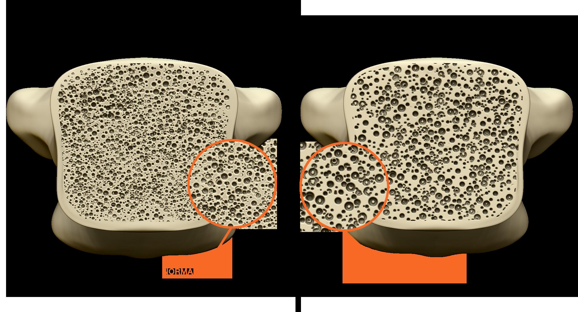 Fratura por osteoporose - Clínica Atualli Especialista Cirurgia Endoscópica de Coluna